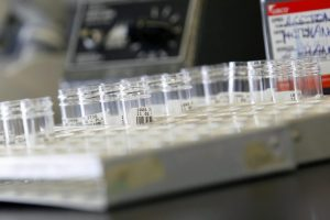 Expertos reclaman más recursos para tratar enfermedades lisosomales