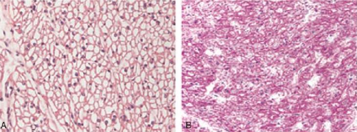 Fibras musculares normales y afectadas con Pompe