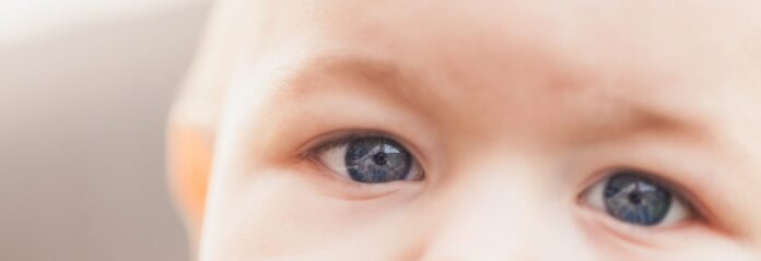 movimiento ocular, nistagmo, Pompe infantil